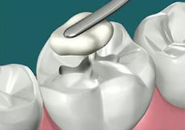 ododontie