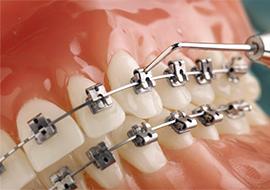 ortodontie21